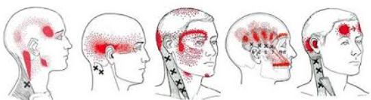 hoofdpijn en triggerpoints